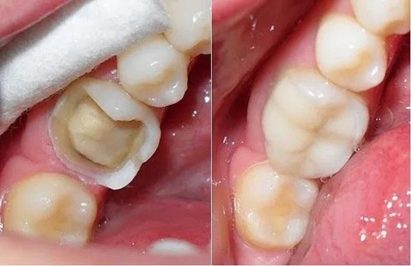 Răng tuy cứng và chắc khỏe, song vẫn có thể bị mẻ, gãy, vỡ bởi nhiều lý do khác nhau