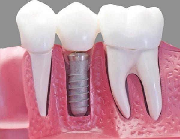 Trồng răng giả số 7 hết bao nhiêu tiền?