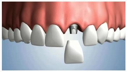 Mất răng số 1 và cách khắc phục