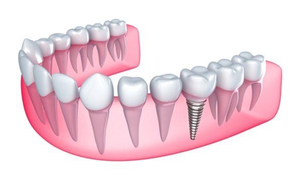 Trồng răng số 6 phương pháp nào tốt nhất? Bao nhiêu tiền?