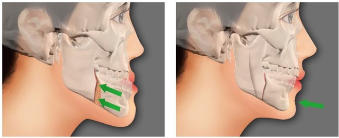 Tình trạng răng móm
