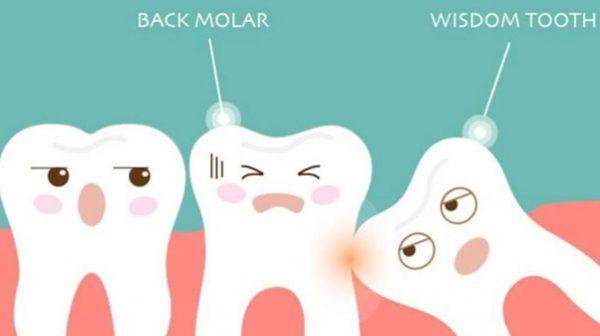 Nhổ mất răng số 8 có nên trồng răng lại không?