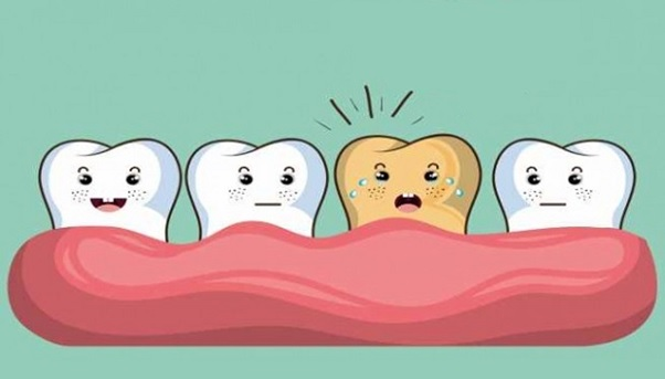 Răng vàng ố là gì? Nguyên nhân làm răng bị vàng ố