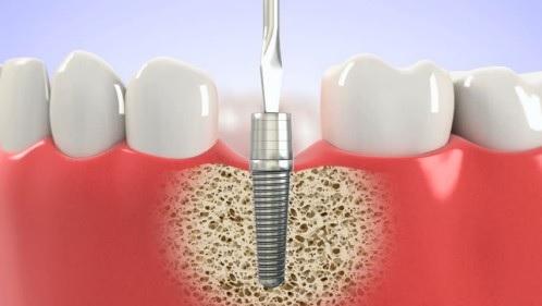 Mất răng bao lâu thì tiêu xương hàm?