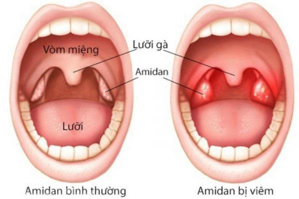 Hôi miệng từ cổ họng chữa như thế nào?