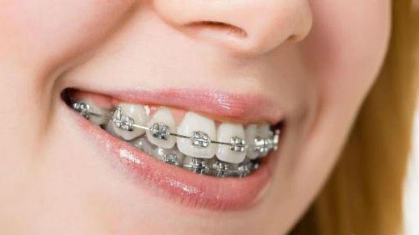 Quy trình niềng răng hô
