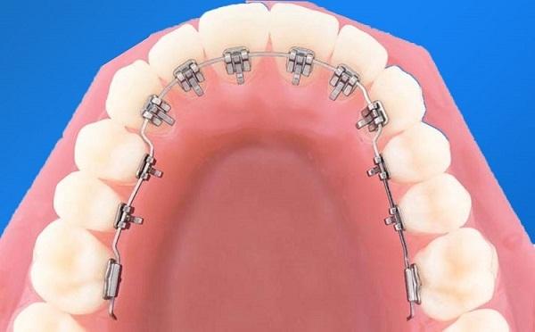 Niềng răng mắc cài mặt trong giúp cải thiện tính thẩm mỹ