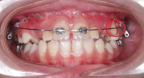 Niềng răng có thể khắc phục được tình trạng răng thưa hiệu quả