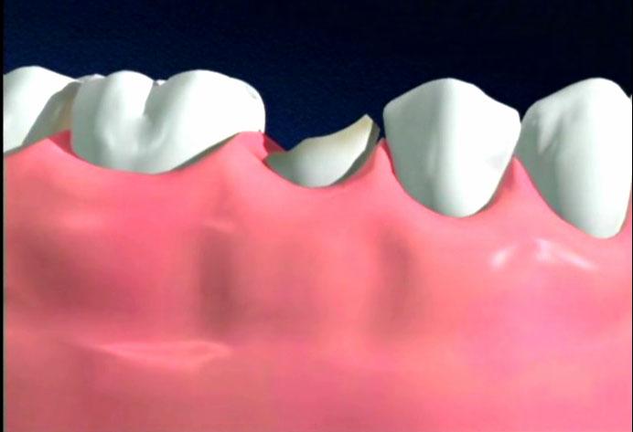 Răng bị mẻ sẽ rất nhạy cảm, yếu hơn so với các răng kế cận
