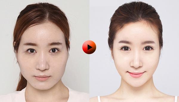 Nguyên nhân nào dẫn đến khuôn mặt không cân đối?