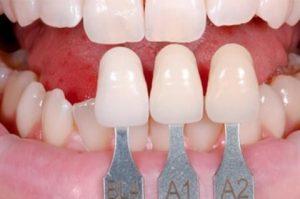 Răng sứ là gì? Làm răng sứ có đẹp truyệt vời như mọi người đồn đại không?