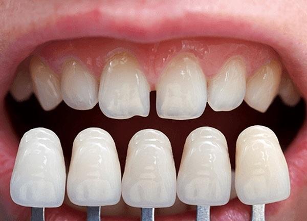 Phủ răng sứ thẩm mỹ là gì? Những ưu nhược điểm của phủ răng sứ