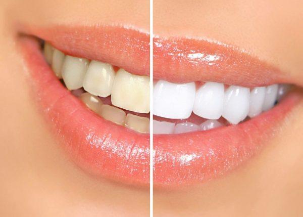 Tẩy trắng răng có an toàn và chất lượng không?