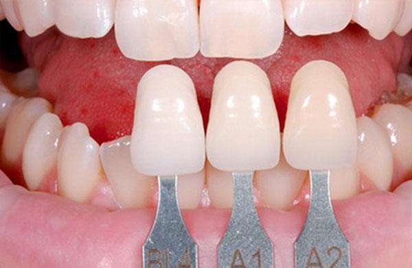 Bọc sứ cho Răng Cửa Bị Thưa có đau không?