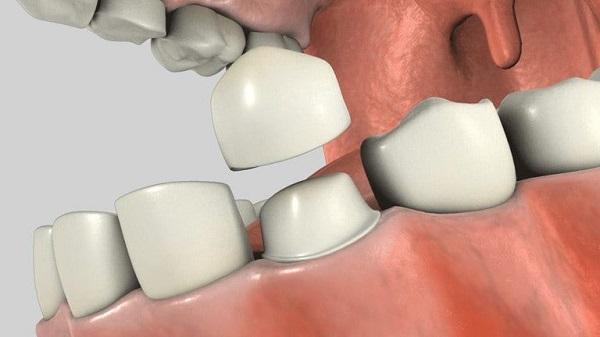 Bọc răng sứ thẩm mỹ mất bao lâu thì xong?