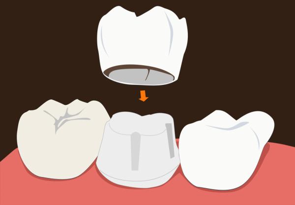 Bọc răng sứ thẩm mỹ là gì? Những ưu nhược điểm của bọc răng sứ