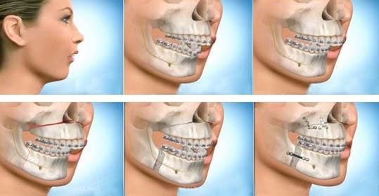 Hàm răng bị hô vẩu là gì? Răng hô là như thế nào?