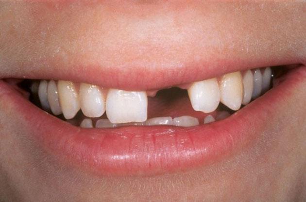 Trường hợp mất răng số 1 ảnh hưởng lớn đến tính thẩm mỹ
