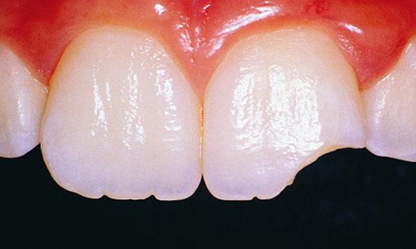 Một số trường hợp mẻ răng và nguyên nhân gây mẻ răng