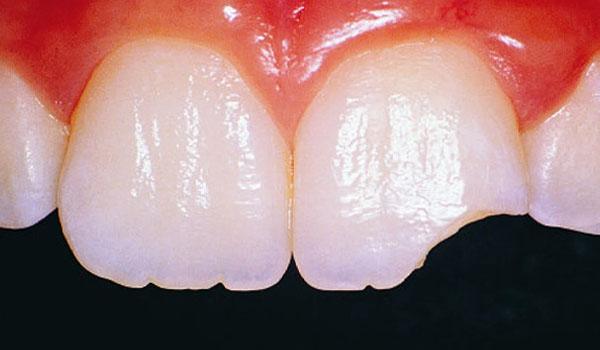Nguyên nhân, cách xử lý và phòng ngừa răng mẻ