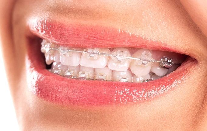 Niềng răng bằng mắc cài sứ