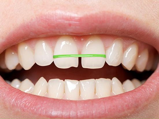 Răng cửa bị thưa phải làm sao và cách khắc phục hiệu quả nhất?