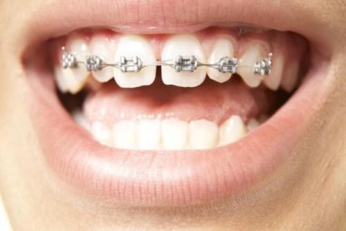 Niềng răng cho răng cửa bị thưa