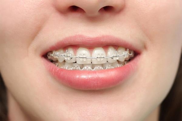 Niềng răng hô là gì? Có bao nhiêu phương pháp niềng răng
