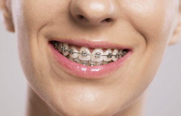 Niềng răng mắc cài là gì? Niềng răng mắc cài có bao nhiêu loại?