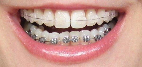 Trường hợp răng lệch lạc, khớp cắn ngược đều thực hiện được bằng phương pháp niềng răng chỉnh nha.