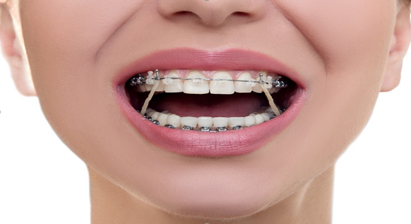 Niềng răng móm (khớp cắn ngược) như thế nào? Niềng trong bao lâu thì có kết quả?
