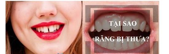 Tình trạng răng cửa bị thưa xuất phát từ nhiều nguyên nhân khác nhau