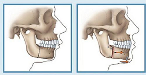Các phương pháp chỉnh sửa, chữa răng hô hiện nay