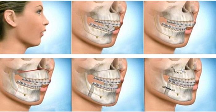 Khớp cắn ngược do cả xương hàm và răng