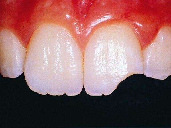 Nguyên nhân, cách xử lý và phòng ngừa răng bị mẻ