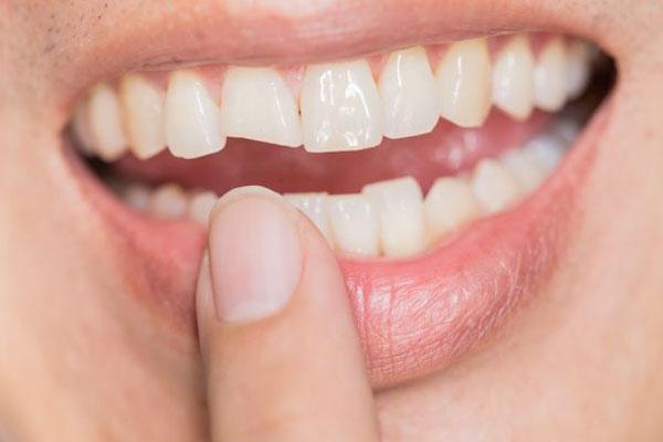 Răng cửa bị mẻ – nên trám hay bọc sứ?