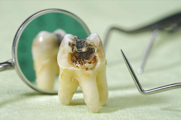 Răng sâu có nên nhổ không? Răng sâu không nhổ có sao không?