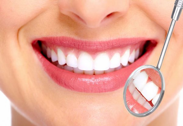 Bọc răng sứ cho răng thưa có được không?