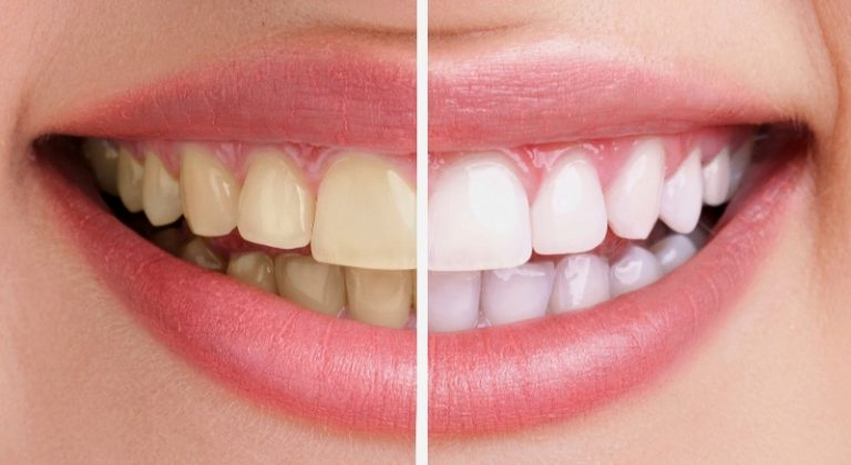 Tẩy trắng răng là phương pháp làm sáng màu răng