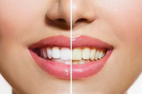 Răng vàng ố phải làm sao? Cách trị răng vàng ố như thế nào?