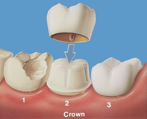 Bọc răng sứ cho răng bị mẻ, vỡ