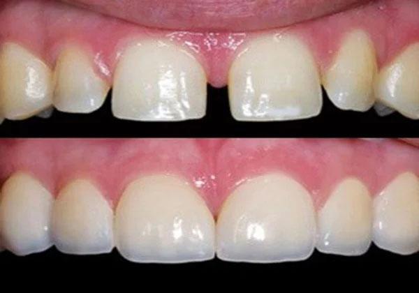 Trám răng là biện pháp khắc phục tình trạng răng thưa đơn giản