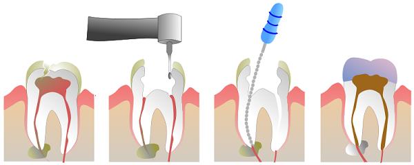 Răng sâu vào tủy – Dấu hiệu nhận biết và cách chữa trị hiệu quả!