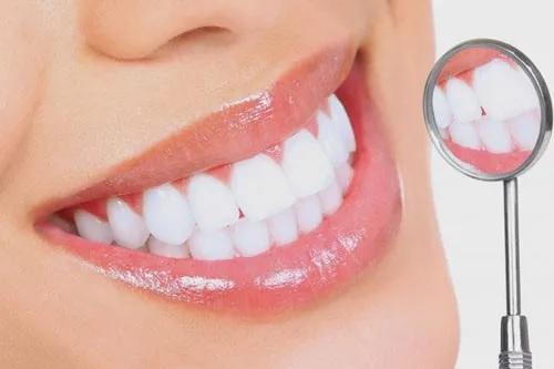 Giải đáp tất tần tật về đắp răng sứ trước khi quyết định làm đẹp