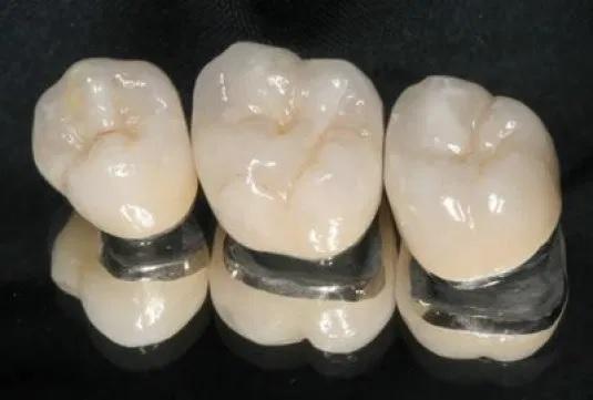 Răng sứ kim loại có tốt không?