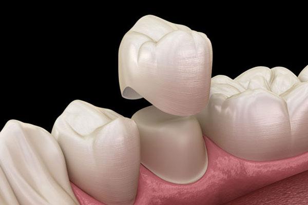 Bọc răng sứ có những ưu điểm gì?