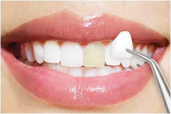 Bọc răng sứ không cần mài răng nhỏ lại? Có thật sự không mài?