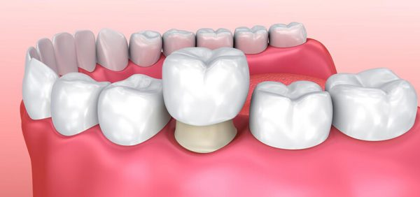 Bọc răng sứ có tốt không? 7 lợi ích tuyệt vời từ bọc răng sứ?