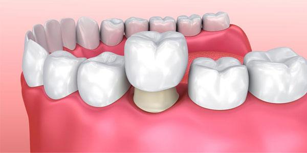 Bọc răng sứ mất thời gian bao lâu?