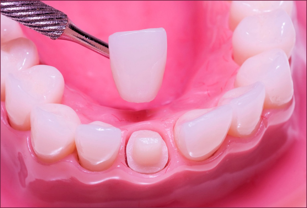 Bọc răng sứ bị hở - Nguyên nhân và cách khắc phục